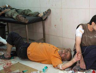 Civis feridos neste sábado em pronto-socorro de Alepo