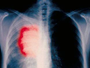 Radiografia de um paciente fumante de 58 anos com câncer de pulmão.
