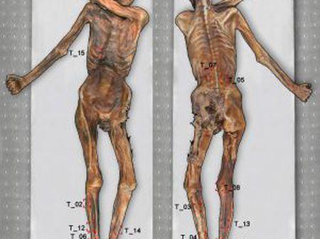 Mapa das tatuagens do homem de gelo, Ötzi.
