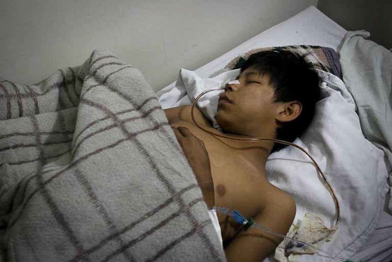 Josiel Benites, de 12 anos, ferido no mês passado.