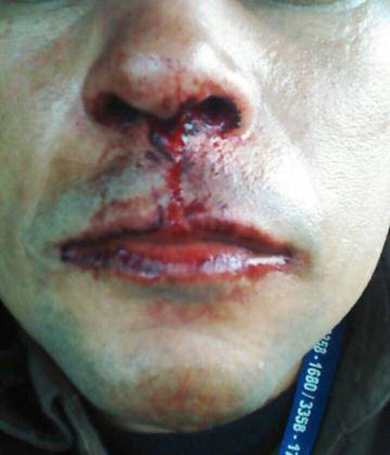 Imagem fornecida pela Vale do funcionário que ela afirma ter sido agredido.