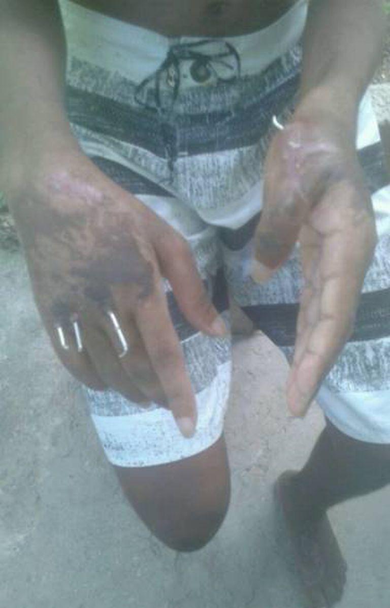 Vítima da chacina após operação nas mãos para reconstruir os ossos