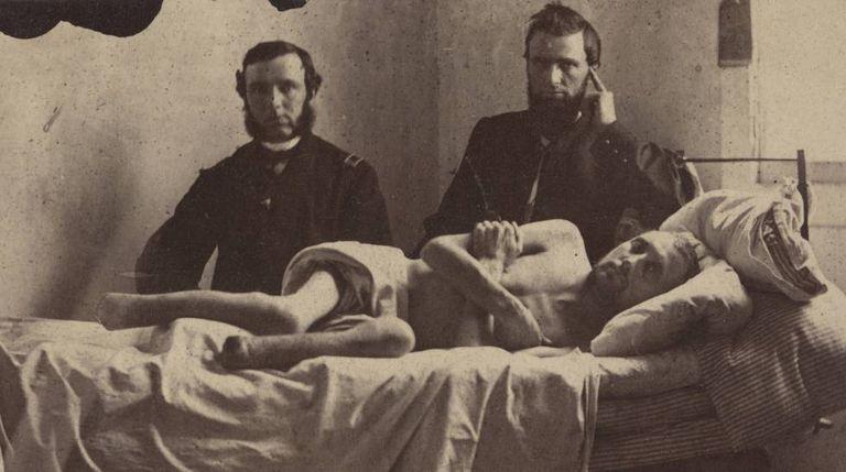O cabo Calvin Bates no hospital, após sair de um campo de prisioneiros dos confederados em Andersonville.