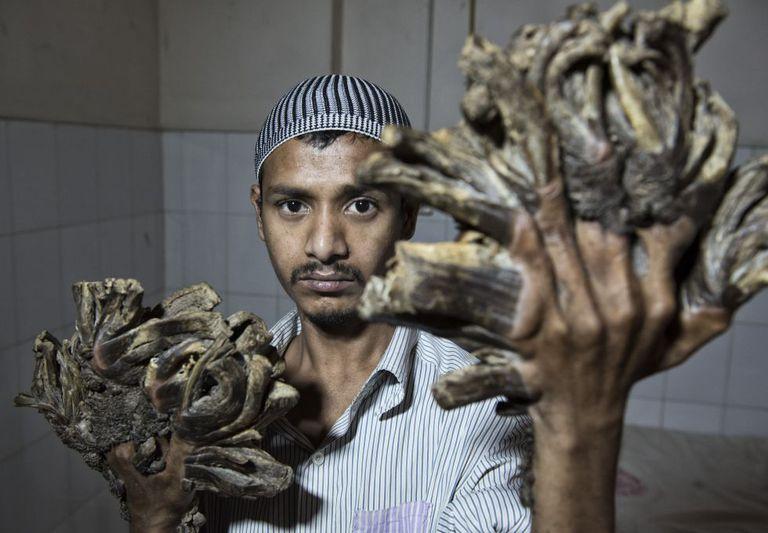 Abul Bajandar é o terceiro caso conhecido do mundo de epidermodisplasia verruciforme, que começou a sofrer há uma década, quando tinha 15 anos.