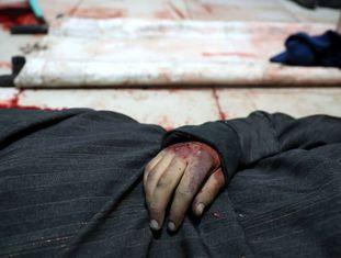 Corpo de um homem morto na cidade de Duma, na região de Guta Oriental, em março