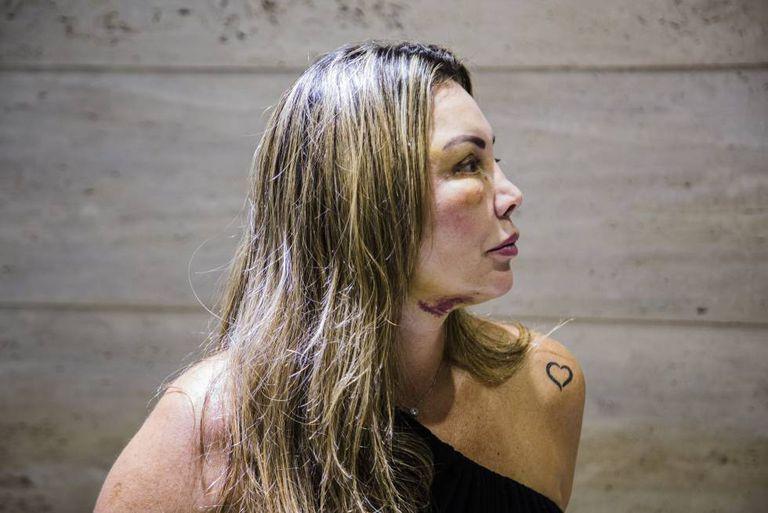 Elaine Caparroz, paisagista, vítima de tentativa de feminicídio