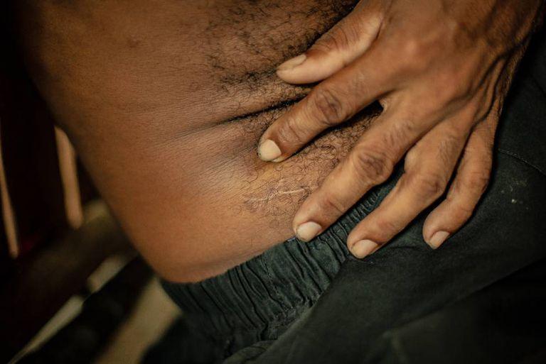 Gilberto Amador mostra a cicatriz na bacia, onde carrega uma bala alojada