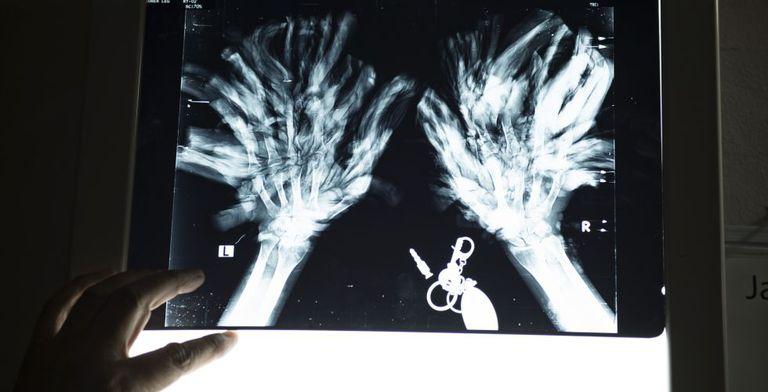 """O médico Samanto Lal Sen mostra uma radiografia das mão de Bajandar: """"Não é fácil lidar com os dedos, e temos que ter cuidado para não danificá-los"""""""