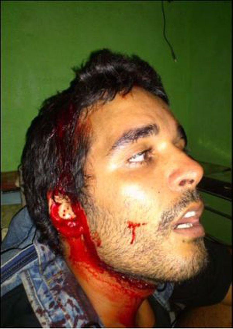 Luaty, depois da invasão à reunião na casa do rapper Carbono.