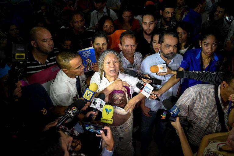 Elizabeth Salazar mostra seu seio esquerdo à imprensa venezuelana.