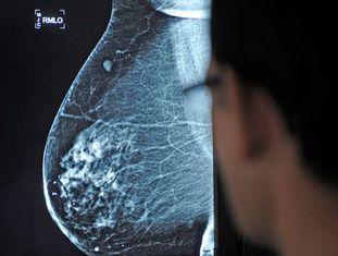 Médico observa uma mamografia no hospital Virgen del Rocío, em Sevilha.