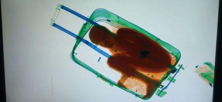 Imagem da criança no scanner da alfândega ceutí.