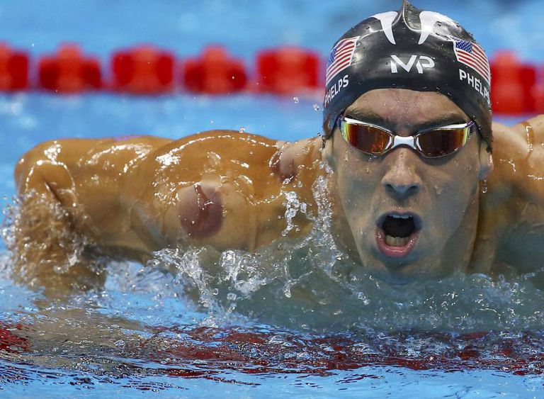 Manchas arroxeadas no corpo de Michael Phelps, resultado de 'cupping' ou ventosaterapia