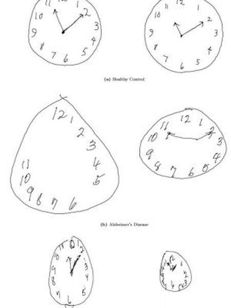 Na imagem são mostradas as diferenças nos desenhos de acordo com a doença. A primeira fila mostra dois relógios feitos por pacientes sãos. Na fila central, o paciente sofre de Alzheimer e na fila inferior, Parkinson.