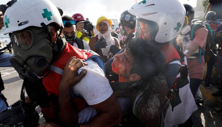 Paramédicos transportam um manifestante opositor ferido.