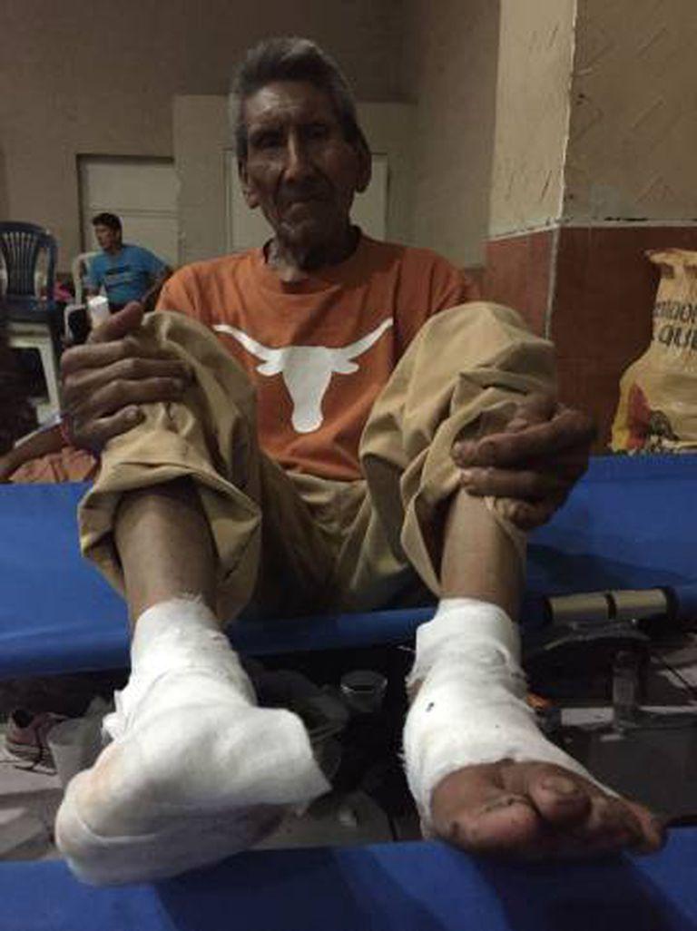 Domingo Lopez, de 79 anos, com os pés queimados pela lava