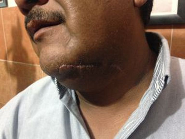 A cicatriz de um dos agredidos.