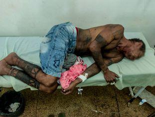 Um dos indígenas hospitalizados após o conflito.