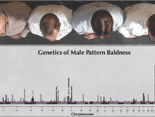Padrões genéticos da calvície em homens.